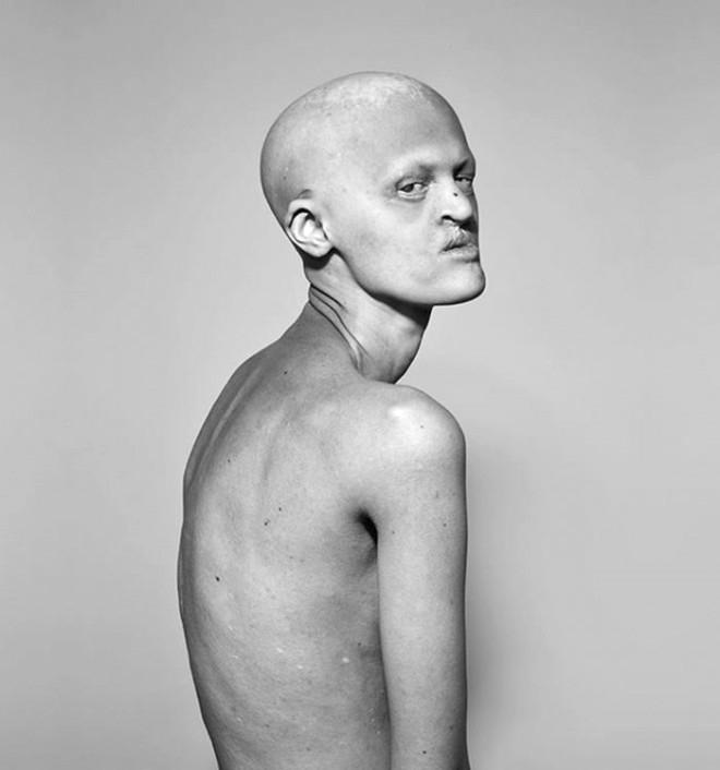 Sıradışı Manken, Görüntüsüyle Moda Dünyasının Tabularını Yıkıyor 1