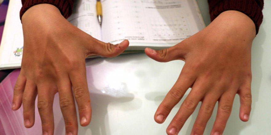 6 parmağını matematik dersinde avantaja çevirdi