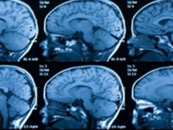 Sevgi beyin gelişimini etkiliyor!