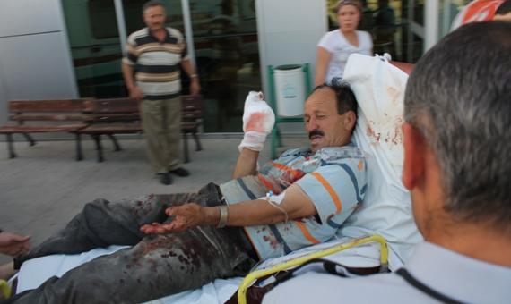 Odun kesme makinasıyla kolunu kesti!