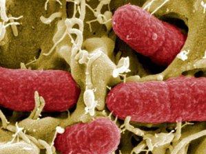 ABD'de Batı Nil Virüsü yayılıyor!