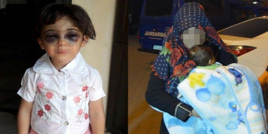 3 Yaşındaki Kızını Döven Üvey Annenin Cezası Belli Oldu