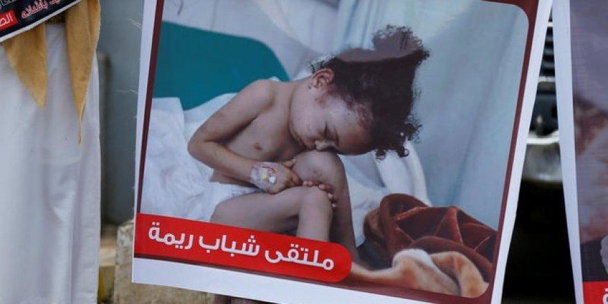 Yemen'de 380 bin çocuk, ölümle yüz yüze