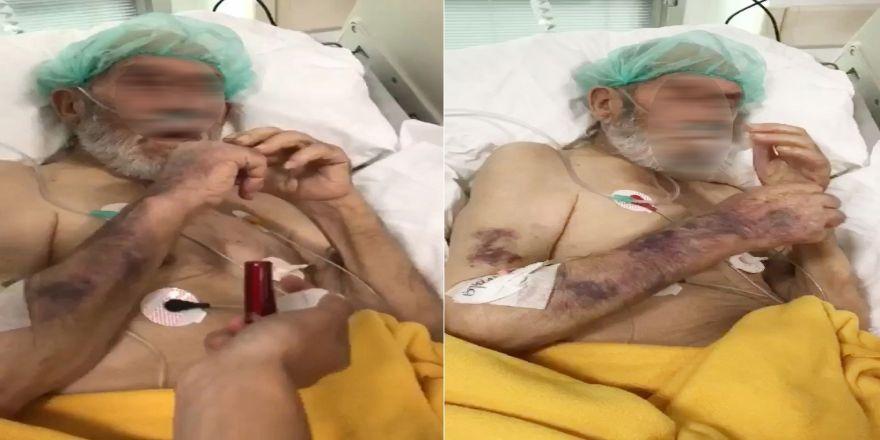 Yoğum Bakım Hastasına Sigara Verip Dalga Geçtiler