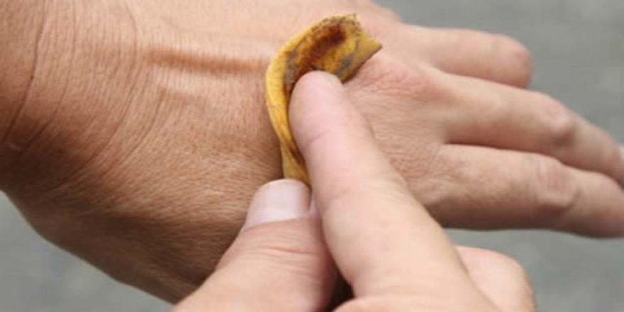 Muz kabuğuyla çözebileceğiniz 6 problem