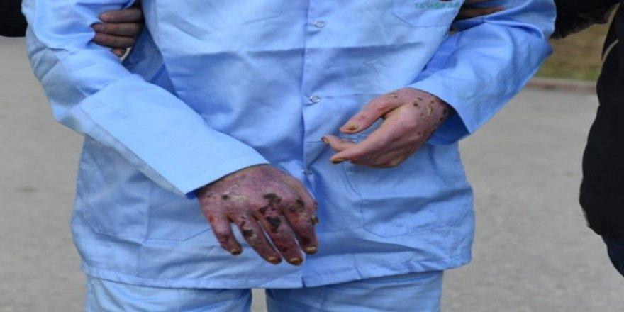 DEAŞ'lı teröristler hastanede yakayı ele verdi!