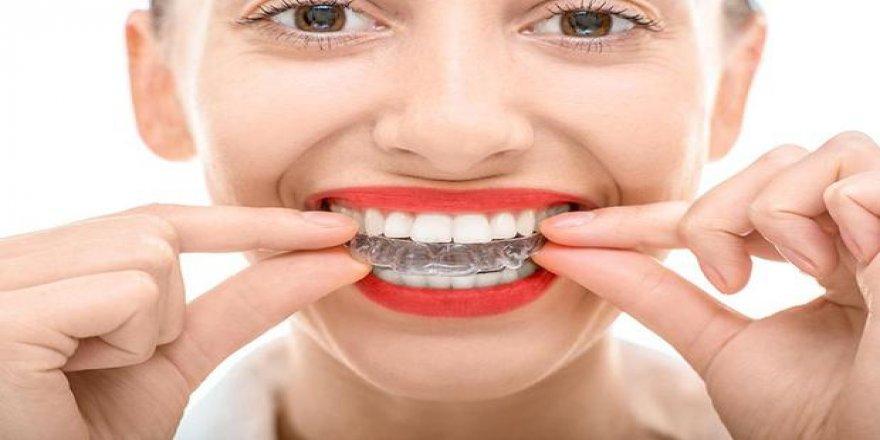 Ortodontide telsiz tedavi mümkün mü?