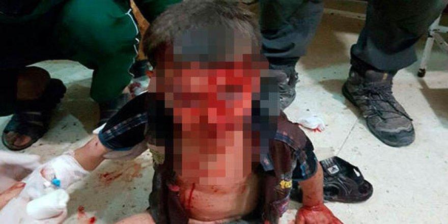 Yaralı çocuk fotoğrafı üzerinden kara propaganda başlatıldı