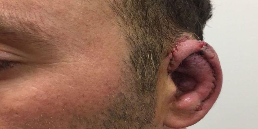 Kazada kaybettiği kulağından yeni kulak yapıldı
