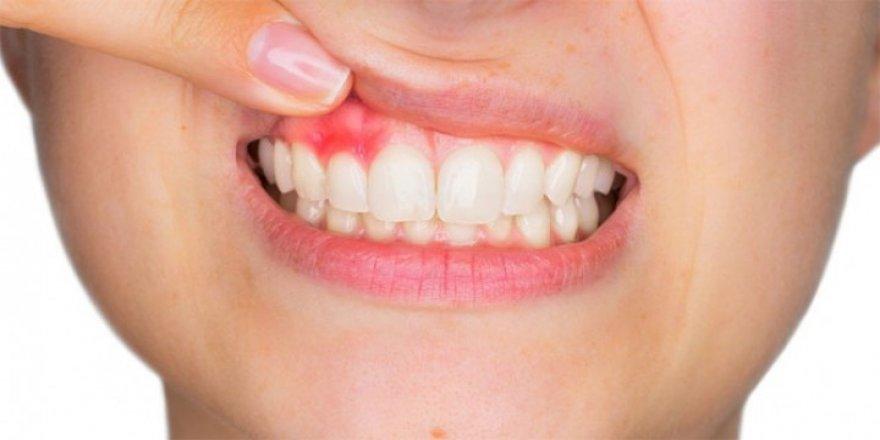 Diş etinde oluşan kanamaları hafife almayın