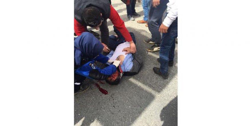 Otomobilin çarptığı Suriyeli baba ve kızı ağır yaralandı