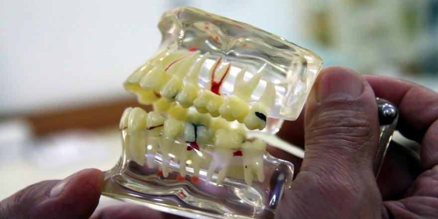 Kırık dolgu, diş kaybına neden olabilir