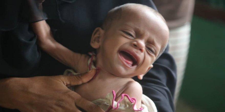 UNICEF'ten Yemen'deki çocuklara yardım