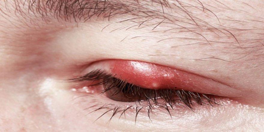 Göz kapağı enfeksiyonu nedir, bitkisel çözüm yolları nelerdir?
