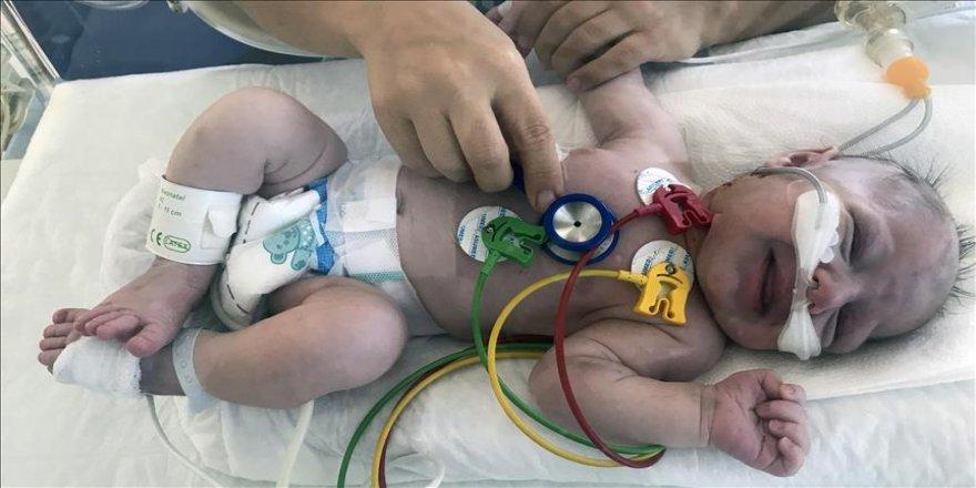 İki günlük Güneş bebeğin damarı stentle açıldı