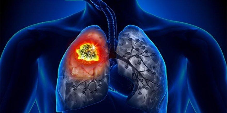 Sigara İçenlerde Akciğer Kanseri Görülme Riski 36 Kat Artıyor