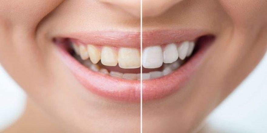 Dikkat: İhmal edilen diş çürüğü kansere bile sebep olabilir!