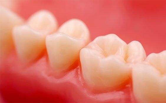 C vitamini yetersizliği diş eti hastalığını tetikliyor
