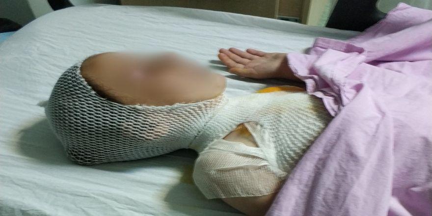 Kaynatılırken taşan süt çocuğu hastanelik etti