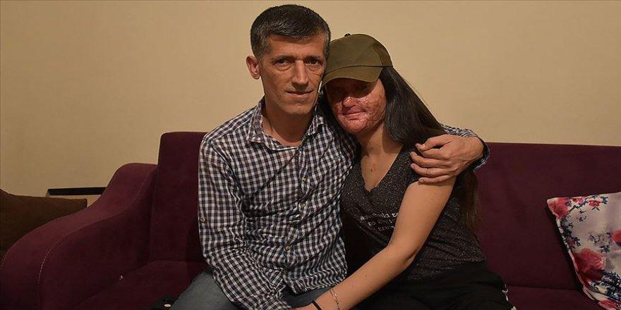 Asitli saldırı mağduru Berfin, Sağlık Bakanlığı girişimleriyle tedaviye hazırlanıyor