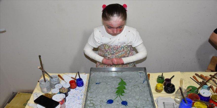 Kelebek hastası Ayşenur sanatla hayata tutunuyor