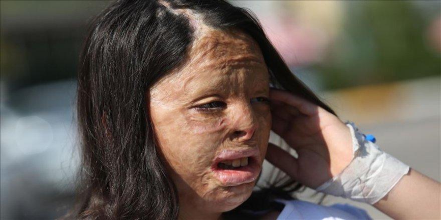 Yüzü yanan Firdevs Tatar'a vücudundan doku nakli yapıldı