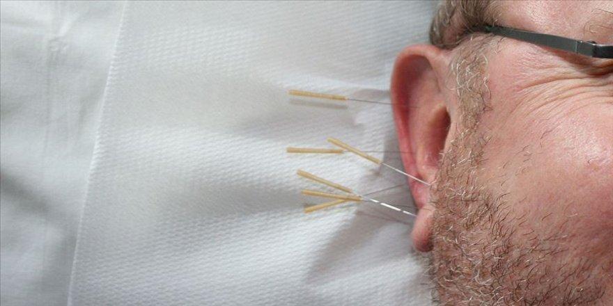 Alzaymırda depresyona 'akupunktur' freni
