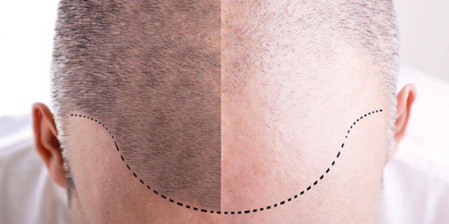 Saç Ekimi Hakkında Merak Edilenleri Doç.Dr.Süleyman Taş anlattı