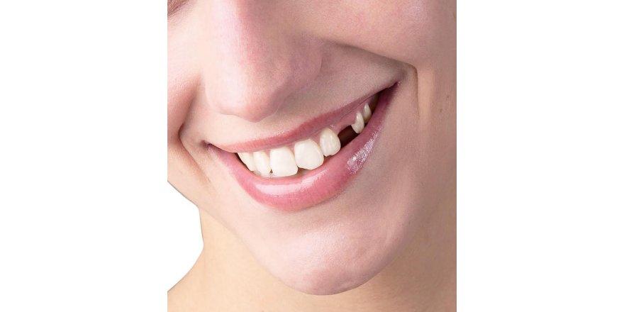 Diş eksikliği,bir çok soruna neden oluyor