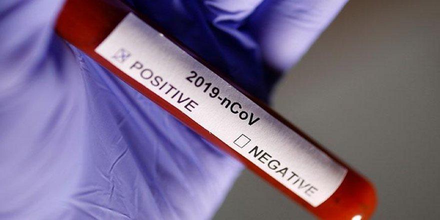 Koronavirüs'ten korunmak için bu uyarıları dikkate alın