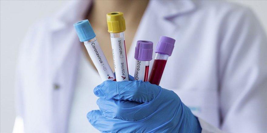 İngiltere'de toplu koronavirüs testleri yapılacak