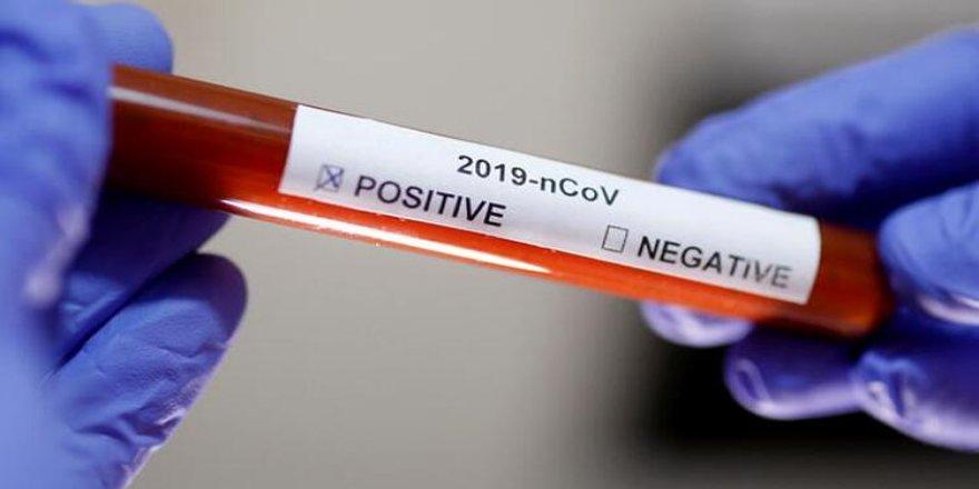 Belediye başkanının ağabeyi koronavirüse yakalandı!