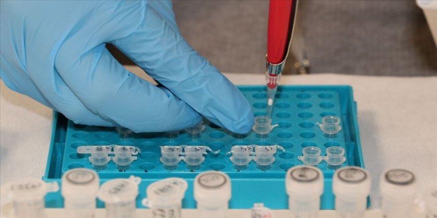 Yüksek kortizol seviyesi Kovid-19 hastalarında ölüm riskini artırabilir