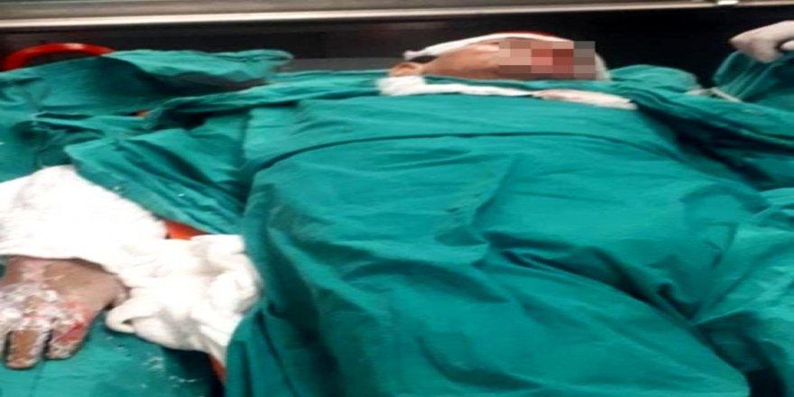 Gebze'de elektrik akımına kapılan çocuk  yaralandı