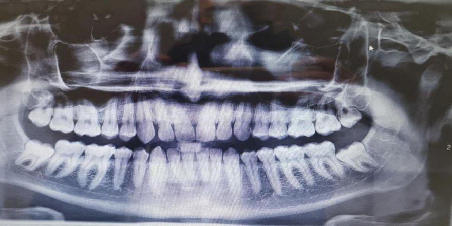 Diş eti hastalığı olanlara korona virüs uyarısı