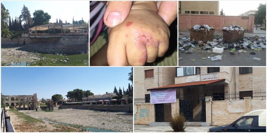 Esed rejiminin kontrolü hiç kaybetmediği Hama'da altyapı sorunları şark çıbanının yayılmasına yol açtı