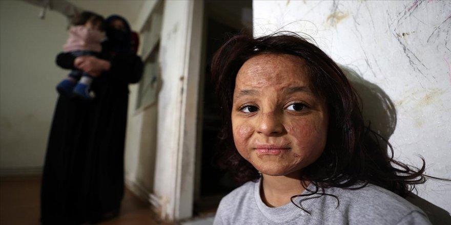 Savaşın izini bombardımanda yanan yüzünde taşıyan küçük Latife aynaya mutlu bakmak istiyor