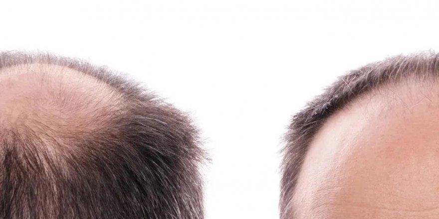Saç Ekim Merkezine Gidilirken Nelere Dikkat Etmelisiniz?