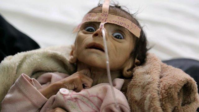 Binlerce İnsan Açlık Sebebiyle Ölümle Yüz Yüze
