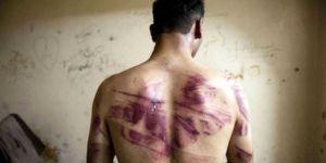 Ülkeden gizlice kaçırılan fotoğraflar, işkence soruşturmasını başlattı