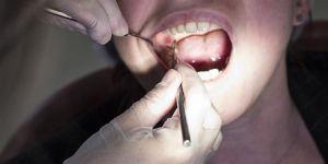 Sigara diş eti hastalığını 4 kat artırıyor