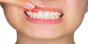 Diş Etindeki Renklenmeler Ne Anlama Geliyor ?