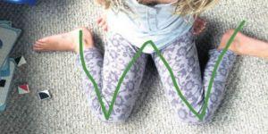 Çocuğunuz bu şekilde oturuyorsa dikkat!