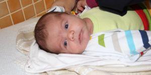 Bir günlük bebeğe yeni yemek borusu yapıldı