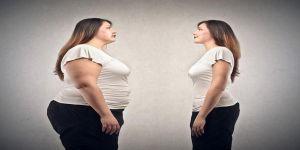 Aşırı kilolara obezite cerrahisi ile veda !