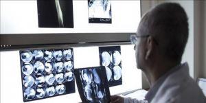Renkli ve 3 boyutlu röntgen ilk kez insan üzerinde denendi