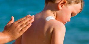 Güneş yanığının etkilerini azaltacak 5 uyarı