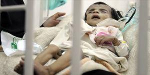 Her yıl 66 bin çocuk ölüyor