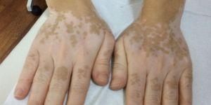 Beyazlama hastalığı nasıl geçer