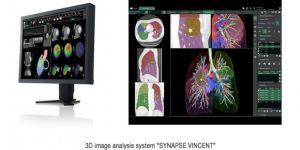 Görüntü analiz sistemine büyük ödül